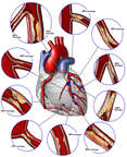 Critical Coronary Artery Disease