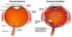 Displaced Prosthetic Lens Complications