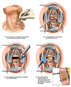 C5-6 Anterior Cervical Discectomy and Fusion