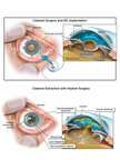 Cataract Extraction with IOL Implantation