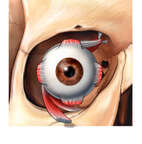 Eyeball in Orbit with Muscles, Anterior View