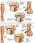 Ankle Joint Injuries with Arthroscopic Repairs