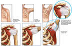 Chronic Shoulder Impingement with Gradual Tearing of the Rotator Cuff