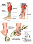 Left Achilles Tendon Rupture with Surgical Repair