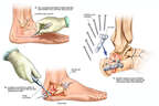 Open Reduction and Internal Fixation of the Right Calcaneus