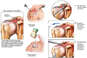 Continued Right Subacromial Impingement with Additional Surgical Repairs