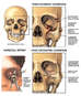 Multiple Facial Skull Fractures with Surgical Repairs