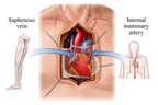 Coronary Artery Bypass Grafts