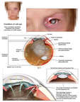 Post Traumatic Left Eye Injuries