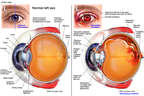Left Eye Injuries
