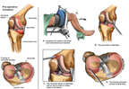 Right Knee Injuries with Arthroscopic Repairs