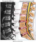 Lumbar Disc Bulge-Herniations