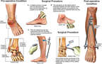 Right Ankle Injuries with Surgical Repairs