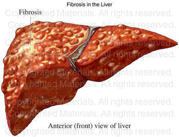 Fibrosis in the Liver