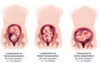 Variation in Fetal Presentation