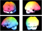 SPECT Scans (3D Brain Images)
