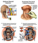 Epidural Steroid Injection and Proposed Two-Level Cervical Spine Fusion Procedure