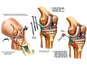 Post-accident Knee and Foot Injuries and Deterioration of the Hip