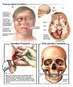 Traumatic Head Injuries with Surgical Fixation of Facial Fractures