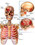 Brain, Skull and Thoracic Injuries