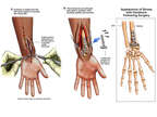 Post-accident Left Wrist Injuries with Surgical Fixation