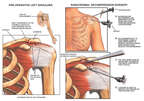 Shoulder Impingement Syndrome - Bone Spurs with Acromioplasty Surgery