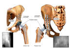 Anterior and Posterior Views of the Left Pelvis Following Total Hip Replacement and Fixation
