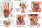 Carpal Tunnel Syndrome and Surgical Repair