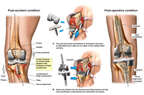 Right Knee Injury with Surgical Total Knee Revision