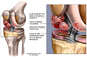 Post-accident Knee Injuries