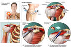 Arthroscopic Shoulder Repairs