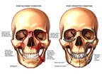 Side by Side Skulls with Initial Facial Fractures and Subsequent Surgical Repairs