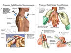 Right Shoulder Decompression and Right Carpal Tunnel Release