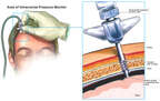 Brain Surgery - Placement of Intracranial Pressure Monitor