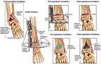 Ankle Fractures and Surgical Fixation