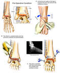 Post-traumatic Right Ankle Arthritis with Surgical Fusion