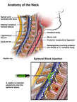 Epidural Block Injection in the Neck