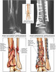 Post-accident Ankle Fractures with Internal Surgical Fixation