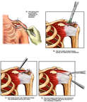Surgical Acromioplasty, Subacromial Bursectomy and Rotator Cuff Reconstruction