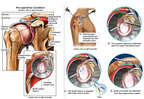 Right Shoulder Injury with Initial Arthroscopic Repairs