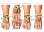Progression of Condition of a  Right Foot Lisfranc Fracture