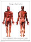 Burn Injuries to tbe Head, Upper Extremities, Chest Back and Thighs,