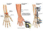 Post-accident Wrist Fractures with External Fixation