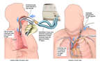 Placement of Endotracheal Intubation and Central Venous Catheter