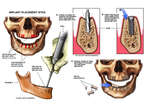 Placement of Maxillary and Mandibular Implants