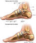 Right Foot Fractures with Surgical Repairs