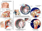 Right Shoulder Injuries with Surgical  Procedures