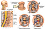 Cervical Disc Injuries with Surgical Repairs