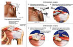 Continued Shoulder Injuries with Additional Surgical Debridement