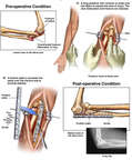 Complex Fracture Dislocation of Left Elbow with Surgical Fixation